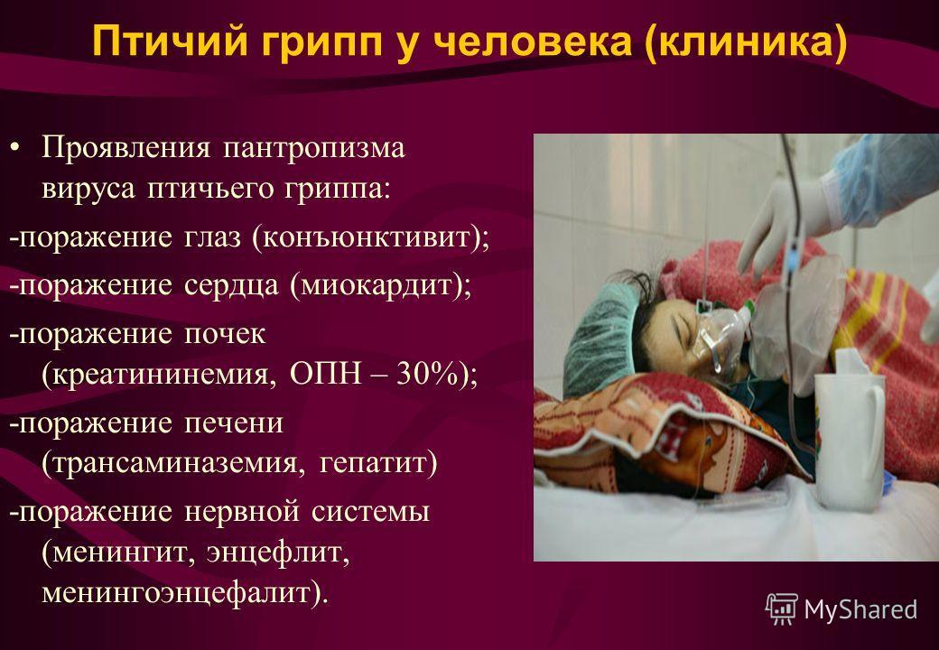 Птичий грипп у человека (клиника) Проявления пантропизма вируса птичьего гриппа: -поражение глаз (конъюнктивит); -поражение сердца (миокардит); -поражение почек (креатининемия, ОПН – 30%); -поражение печени (трансаминаземия, гепатит) -поражение нервн