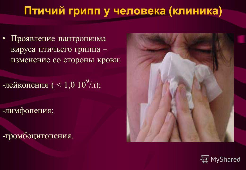 Птичий грипп у человека (клиника) Проявление пантропизма вируса птичьего гриппа – изменение со стороны крови: -лейкопения ( < 1,0 10 9 /л); -лимфопения; -тромбоцитопения.