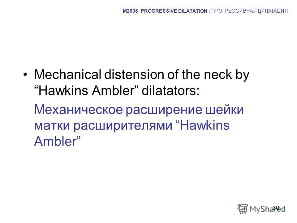 30 Mechanical distension of the neck by Hawkins Ambler dilatators: Механическое расширение шейки матки расширителями Hawkins Ambler M2005 PROGRESSIVE DILATATION : ПРОГРЕССИВНАЯ ДИЛАТАЦИЯ