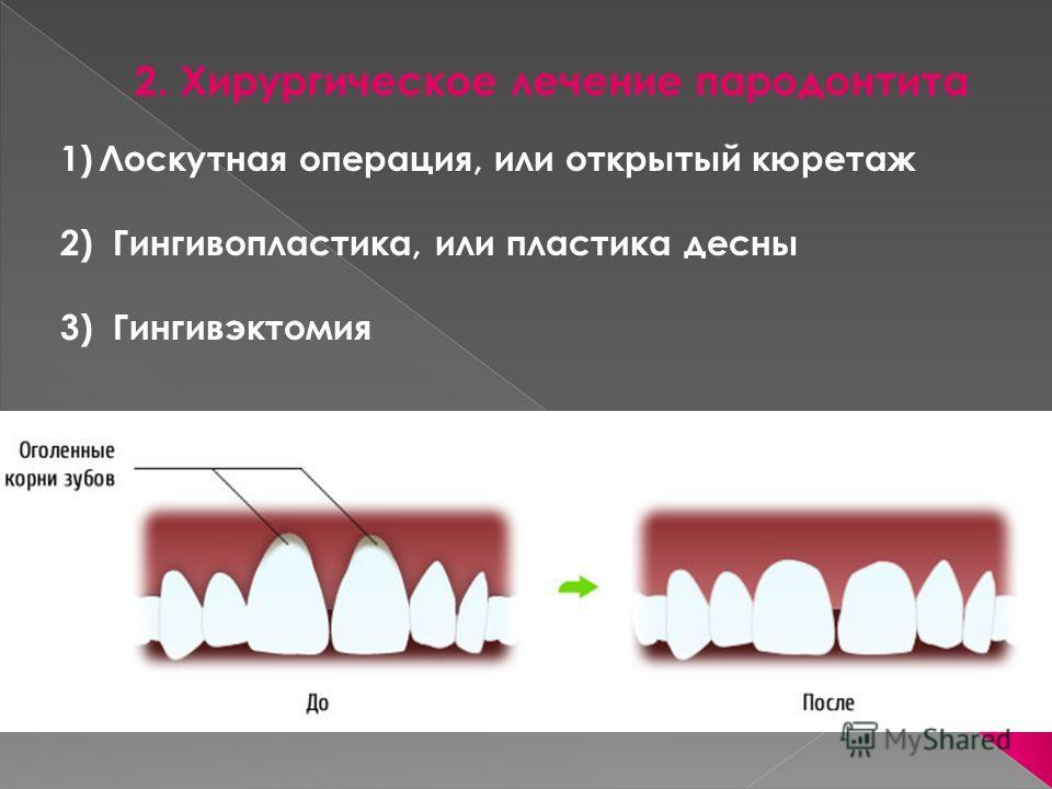 2. Хирургическое лечение пародонтита 1)Лоскутная операция, или открытый кюретаж 2) Гингивопластика, или пластика десны 3) Гингивэктомия