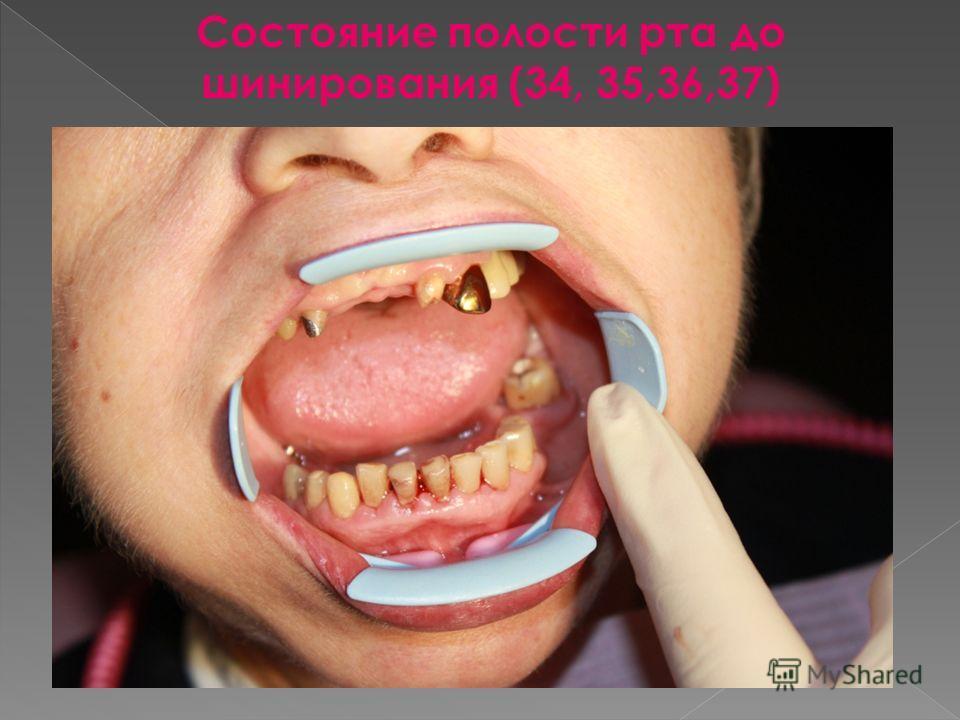 Состояние полости рта до шинирования (34, 35,36,37)