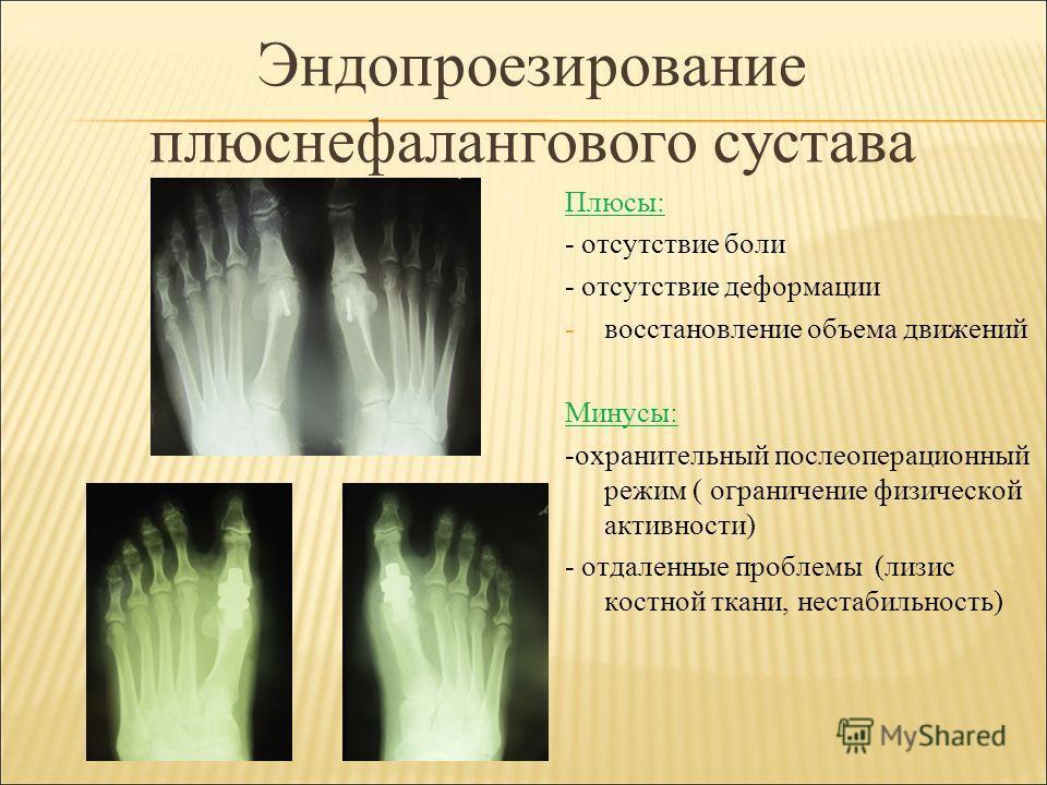 Эндопроезирование плюснефалангового сустава Плюсы: - отсутствие боли - отсутствие деформации -восстановление объема движений Минусы: -охранительный послеоперационный режим ( ограничение физической активности) - отдаленные проблемы (лизис костной ткан