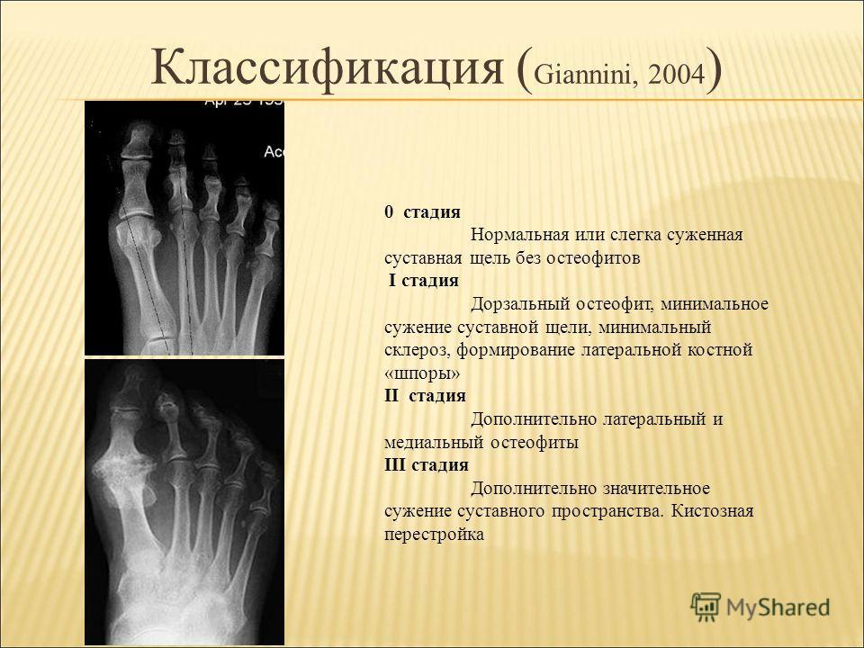 Классификация ( Giannini, 2004 ) 0 стадия Нормальная или слегка суженная суставная щель без остеофитов I стадия Дорзальный остеофит, минимальное сужение суставной щели, минимальный склероз, формирование латеральной костной «шпоры» II стадия Дополните