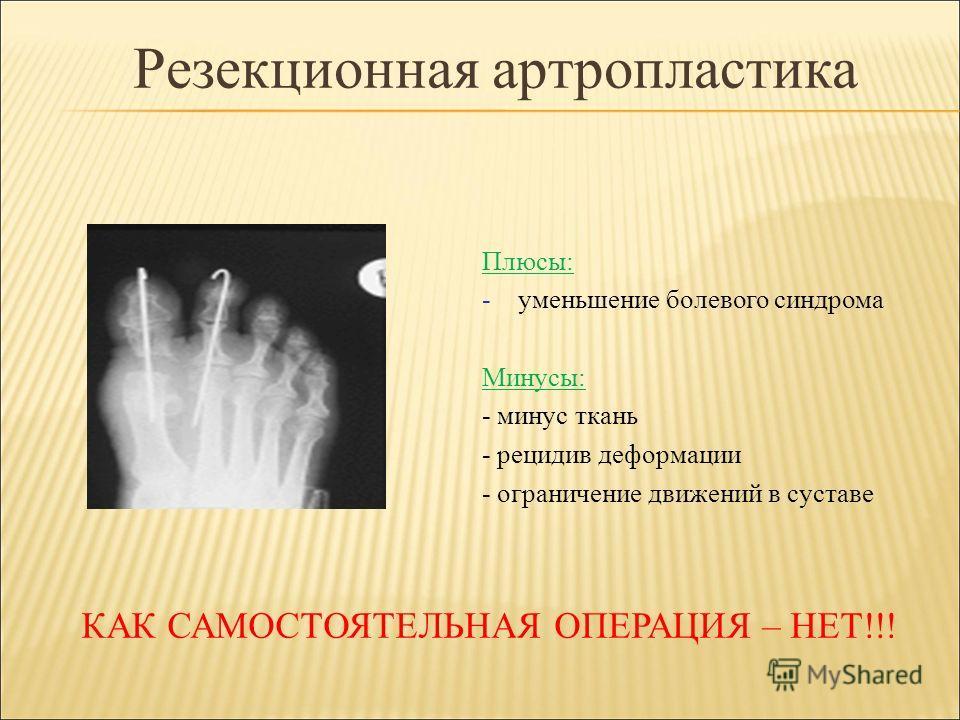 Резекционная артропластика Плюсы: -уменьшение болевого синдрома Минусы: - минус ткань - рецидив деформации - ограничение движений в суставе КАК САМОСТОЯТЕЛЬНАЯ ОПЕРАЦИЯ – НЕТ!!!