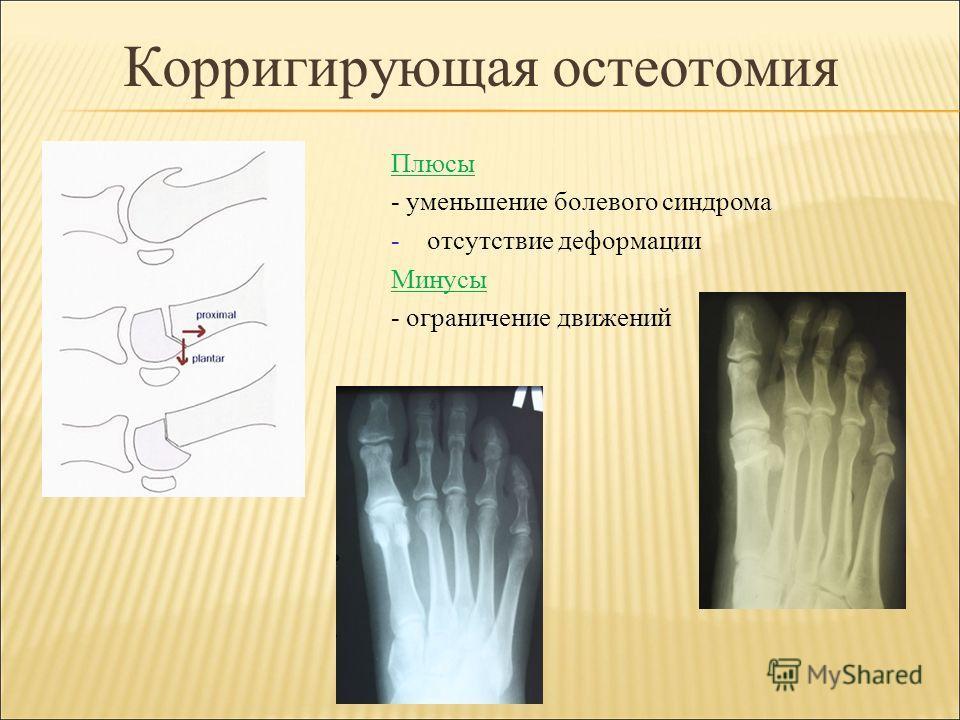 Корригирующая остеотомия Плюсы - уменьшение болевого синдрома -отсутствие деформации Минусы - ограничение движений