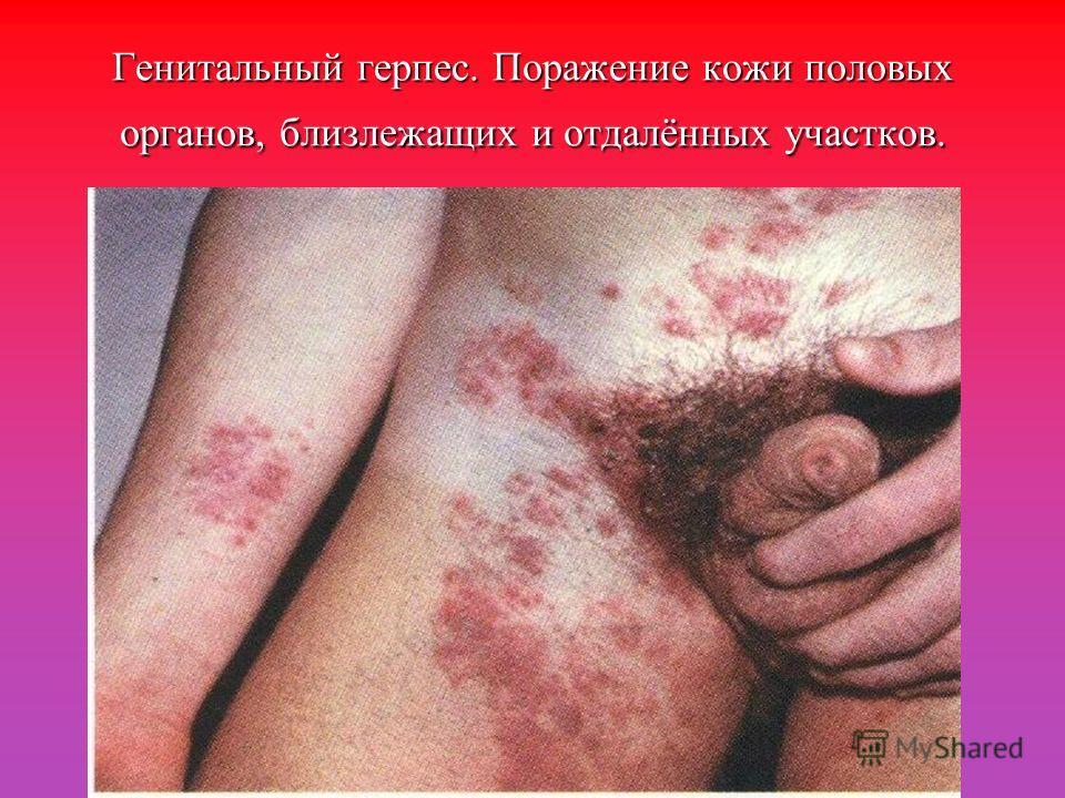 Генитальный герпес. Поражение кожи половых органов, близлежащих и отдалённых участков.
