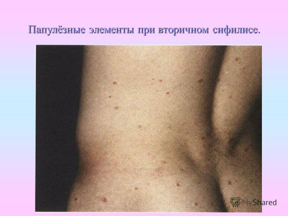 Папулёзные элементы при вторичном сифилисе.