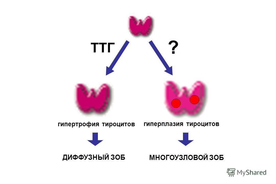 ДИФФУЗНЫЙ ЗОБ МНОГОУЗЛОВОЙ ЗОБ гипертрофия тироцитов гиперплазия тироцитов ТТГ ?