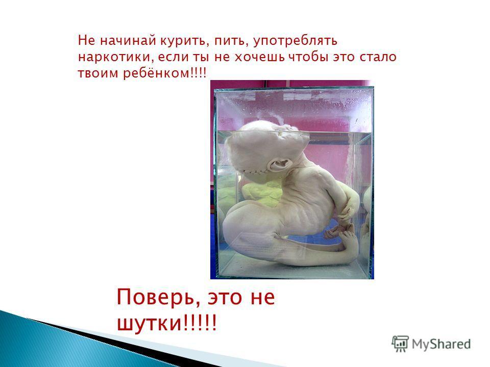 Не начинай курить, пить, употреблять наркотики, если ты не хочешь чтобы это стало твоим ребёнком!!!! Поверь, это не шутки!!!!!