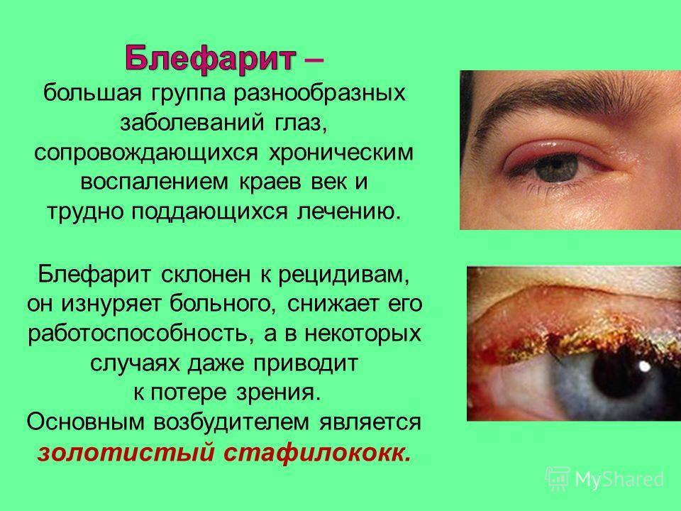 Блефарит склонен к рецидивам, он изнуряет больного, снижает его работоспособность, а в некоторых случаях даже приводит к потере зрения. Основным возбудителем является золотистый стафилококк.