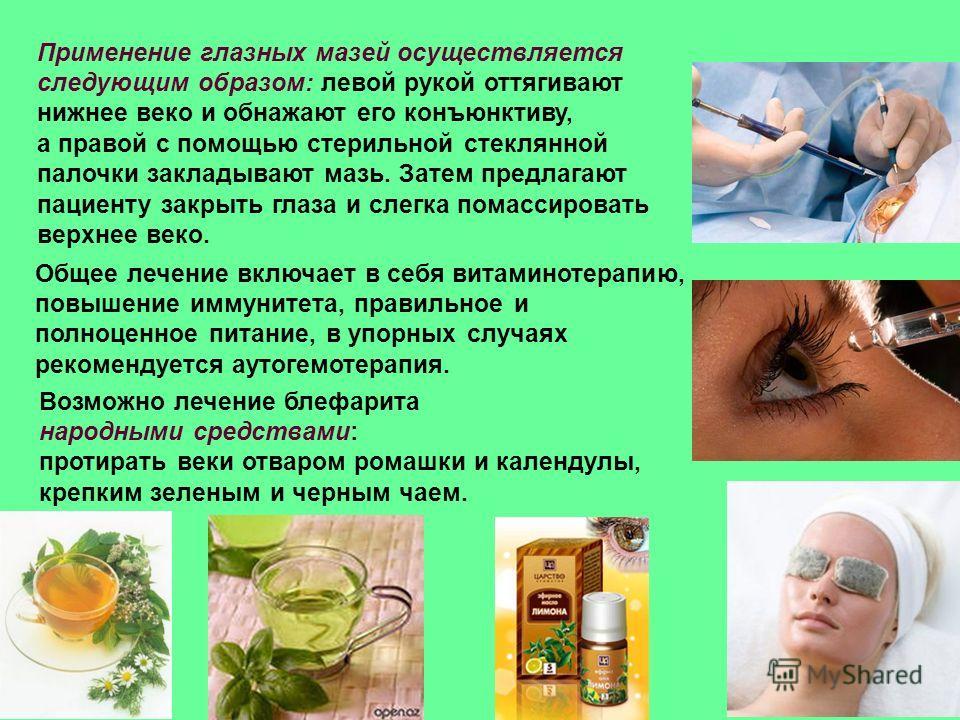 Применение глазных мазей осуществляется следующим образом: левой рукой оттягивают нижнее веко и обнажают его конъюнктиву, а правой с помощью стерильной стеклянной палочки закладывают мазь. Затем предлагают пациенту закрыть глаза и слегка помассироват