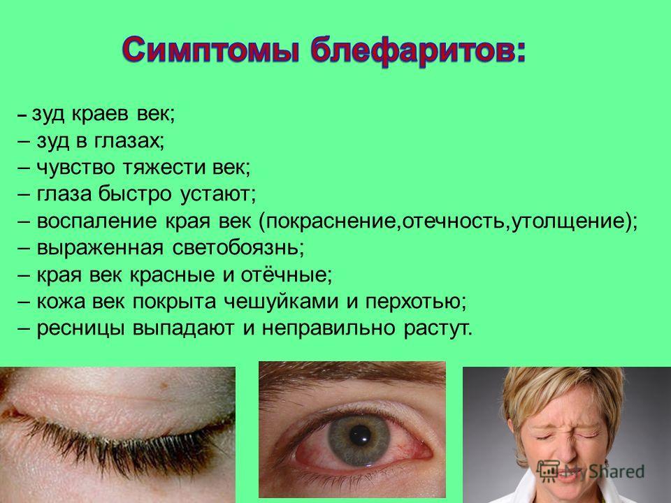 мазь против аллергии для глаз
