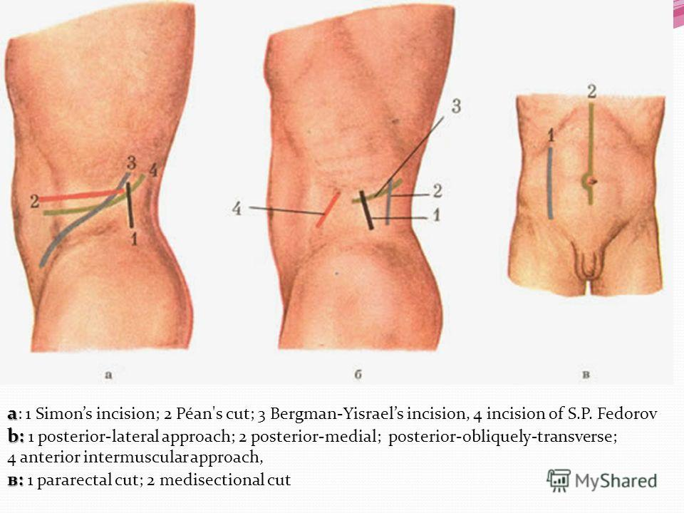 a a : 1 Simons incision; 2 Péan's cut; 3 Bergman-Yisraels incision, 4 incision of S.P. Fedorov b: b: 1 posterior-lateral approach; 2 posterior-medial; posterior-obliquely-transverse; 4 anterior intermuscular approach, в: в: 1 pararectal cut; 2 medise