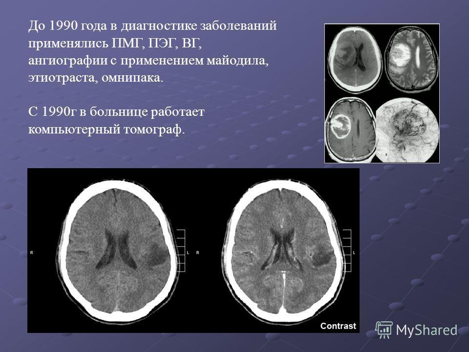 До 1990 года в диагностике заболеваний применялись ПМГ, ПЭГ, ВГ, ангиографии с применением майодила, этиотраста, омнипака. С 1990г в больнице работает компьютерный томограф.