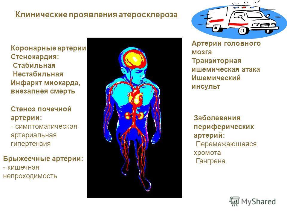 Коронарные артерии Стенокардия: Стабильная Нестабильная Инфаркт миокарда, внезапнея смерть Артерии головного мозга Транзиторная ишемическая атака Ишемический инсульт Стеноз почечной артерии: - симптоматическая артериальная гипертензия Заболевания пер