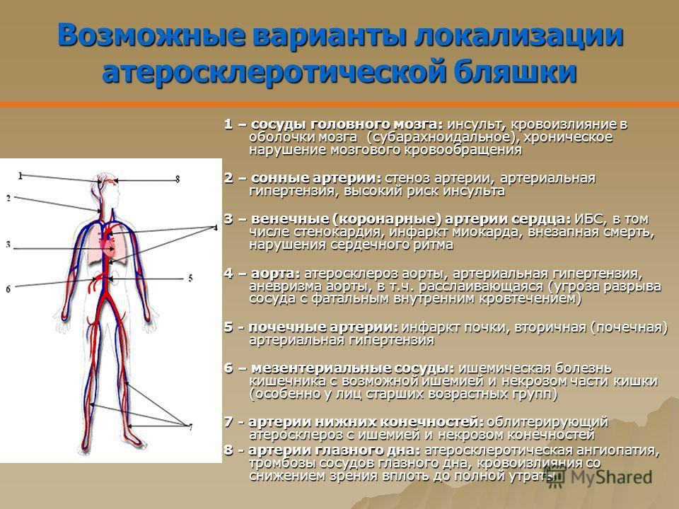 Возможные варианты локализации атеросклеротической бляшки 1 – сосуды головного мозга: инсульт, кровоизлияние в оболочки мозга (субарахноидальное), хроническое нарушение мозгового кровообращения 2 – сонные артерии: стеноз артерии, артериальная гиперте