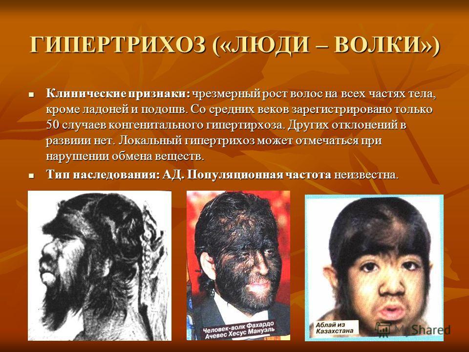 ГИПЕРТРИХОЗ («ЛЮДИ – ВОЛКИ») Клинические признаки: чрезмерный рост волос на всех частях тела, кроме ладоней и подошв. Со средних веков зарегистрировано только 50 случаев конгенитального гипертирхоза. Других отклонений в развиии нет. Локальный гипертр