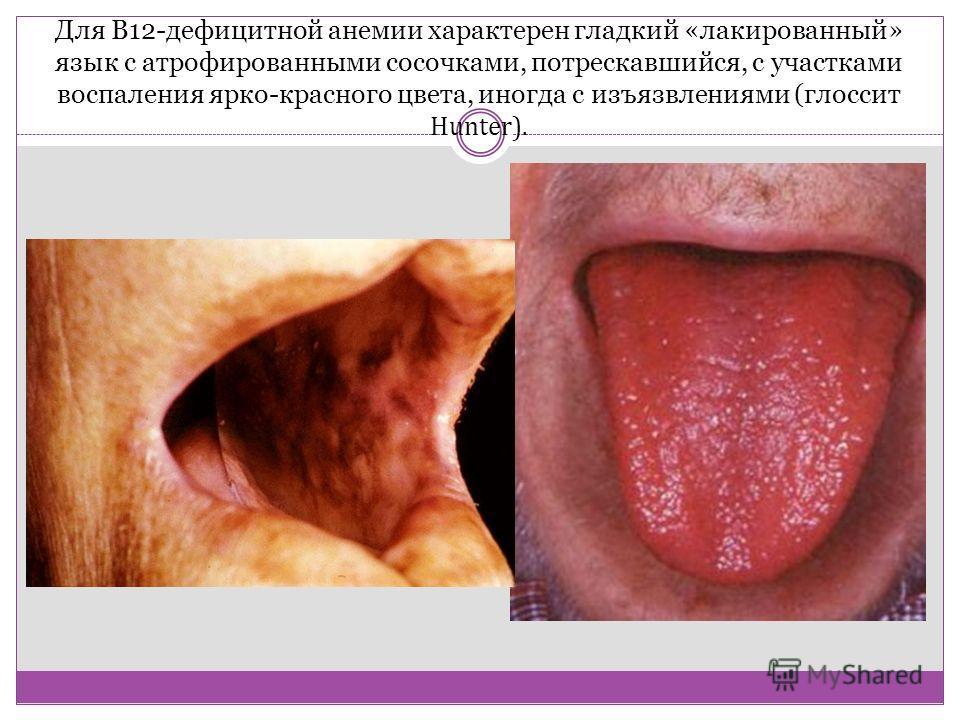 Для В12-дефицитной анемии характерен гладкий «лакированный» язык с атрофированными сосочками, потрескавшийся, с участками воспаления ярко-красного цвета, иногда с изъязвлениями (глоссит Hunter).