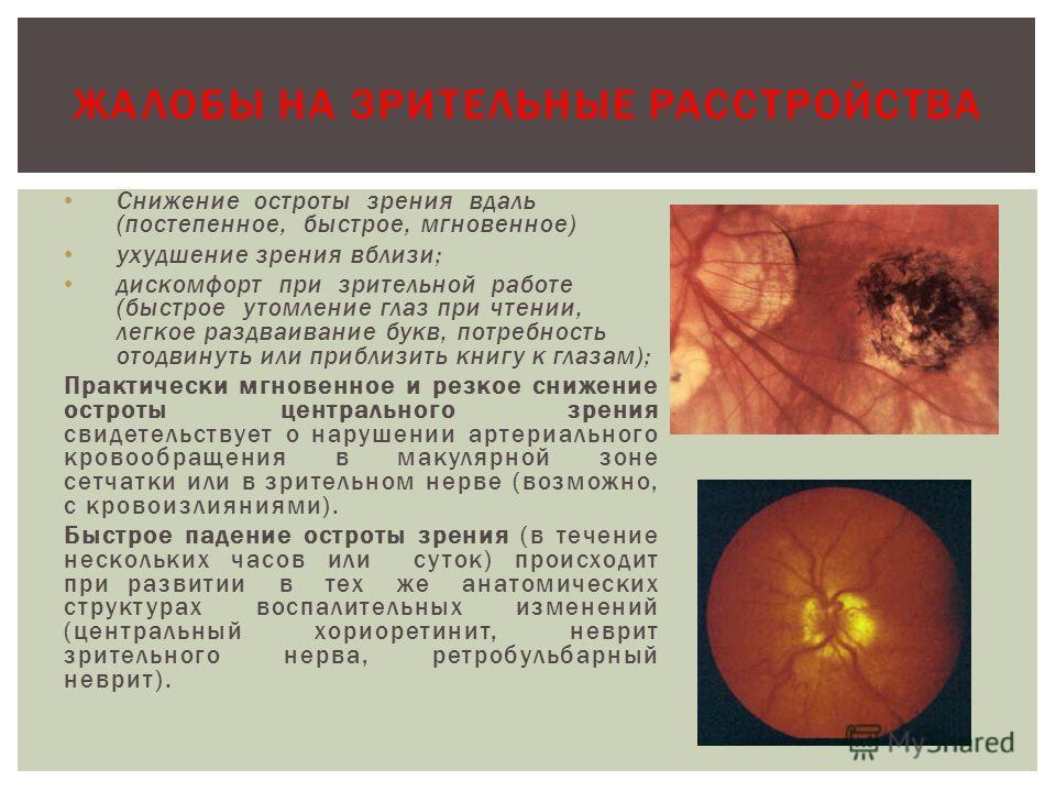 Снижение остроты зрения вдаль (постепенное, быстрое, мгновенное) ухудшение зрения вблизи; дискомфорт при зрительной работе (быстрое утомление глаз при чтении, легкое раздваивание букв, потребность отодвинуть или приблизить книгу к глазам); Практическ