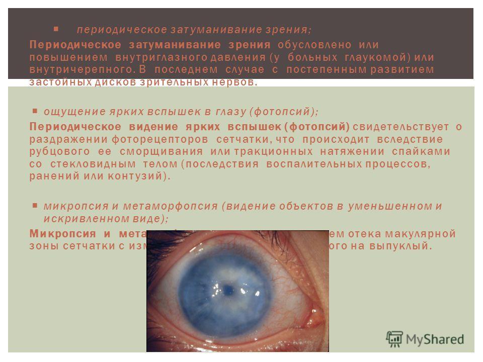 периодическое затуманивание зрения; Периодическое затуманивание зрения обусловлено или повышением внутриглазного давления (у больных глаукомой) или внутричерепного. В последнем случае с постепенным развитием застойных дисков зрительных нервов. ощущен