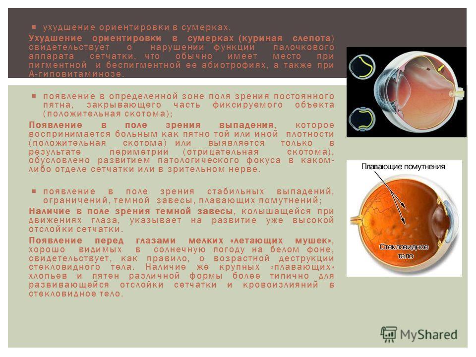 ухудшение ориентировки в сумерках. Ухудшение ориентировки в сумерках (куриная слепота) свидетельствует о нарушении функции палочкового аппарата сетчатки, что обычно имеет место при пигментной и беспигментной ее абиотрофиях, а также при А-гиповитамино