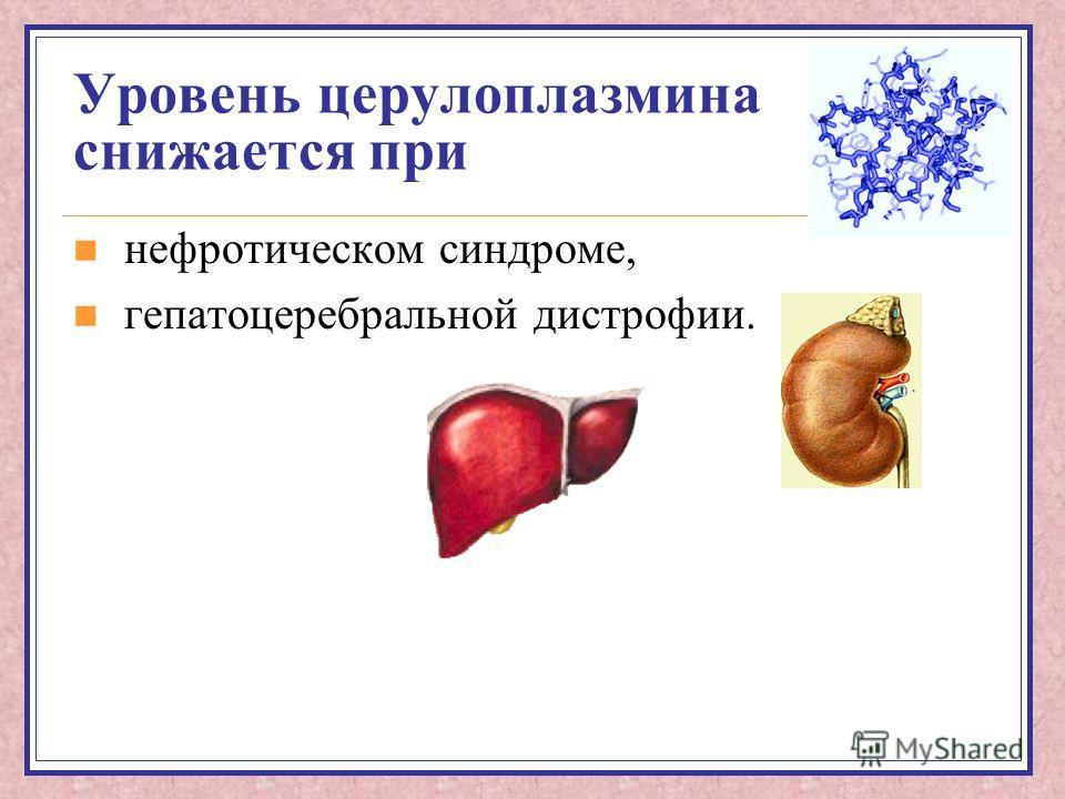 Уровень церулоплазмина снижается при нефротическом синдроме, гепатоцеребральной дистрофии.