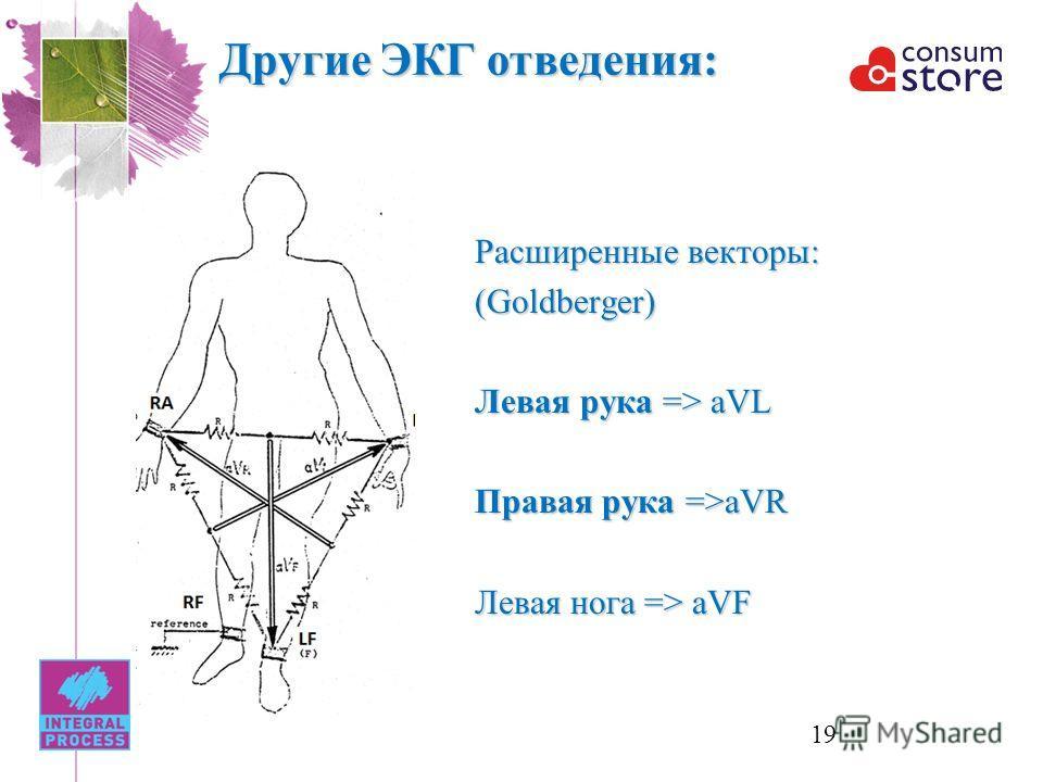 Другие ЭКГ отведения: Расширенные векторы: (Goldberger) Левая рука => aVL Правая рука =>aVR Левая нога => aVF 19