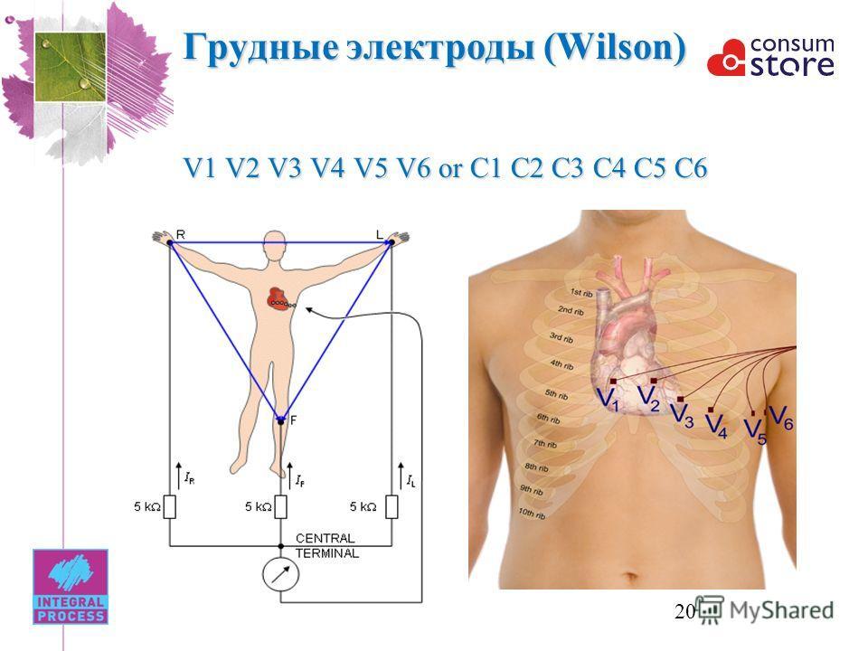 Грудные электроды (Wilson) V1 V2 V3 V4 V5 V6 or C1 C2 C3 C4 C5 C6 20