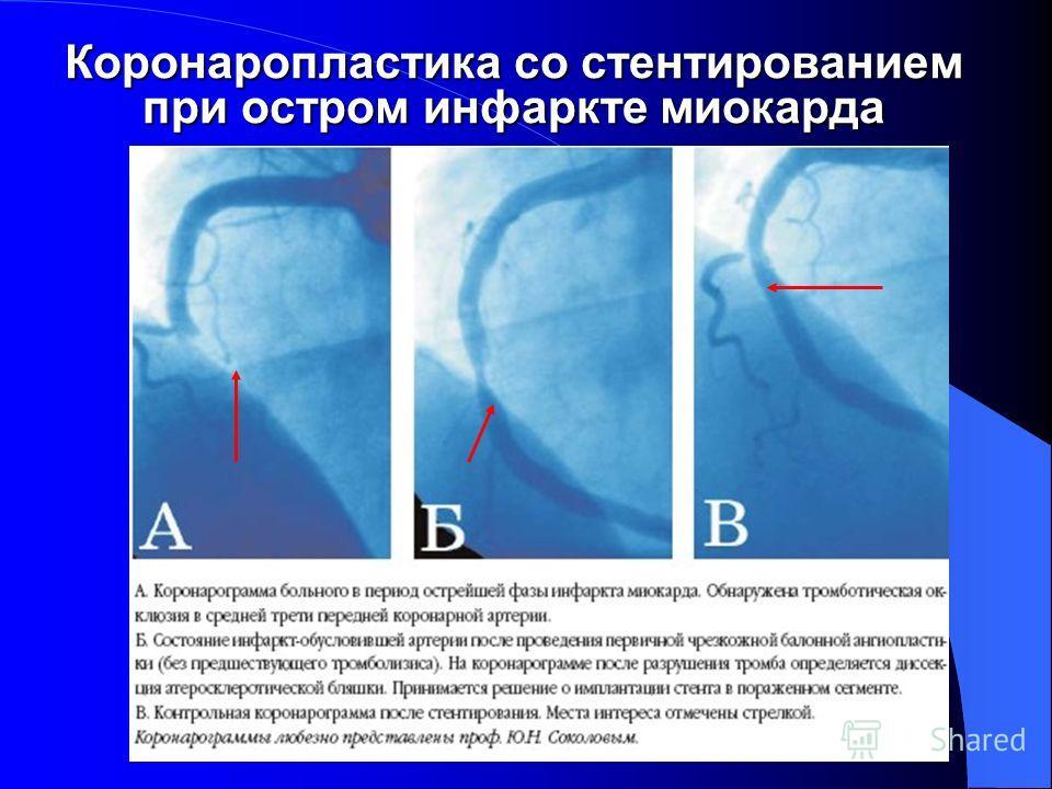 Коронаропластика со стентированием при остром инфаркте миокарда