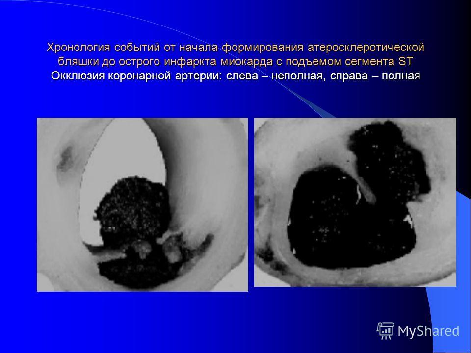 Хронология событий от начала формирования атеросклеротической бляшки до острого инфаркта миокарда с подъемом сегмента ST Окклюзия коронарной артерии: слева – неполная, справа – полная