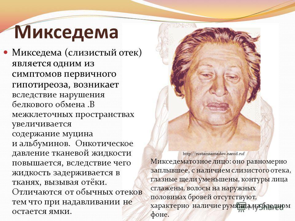 Микседема Микседема (слизистый отек) является одним из симптомов первичного гипотиреоза, возникает вследствие нарушения белкового обмена.В межклеточных пространствах увеличивается содержание муцина и альбуминов. Онкотическое давление тканевой жидкост