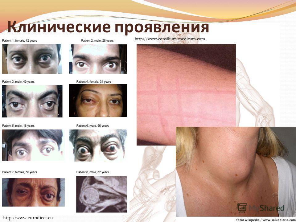 Клинические проявления http://www.eurodieet.eu http://www.consilium-medicum.com