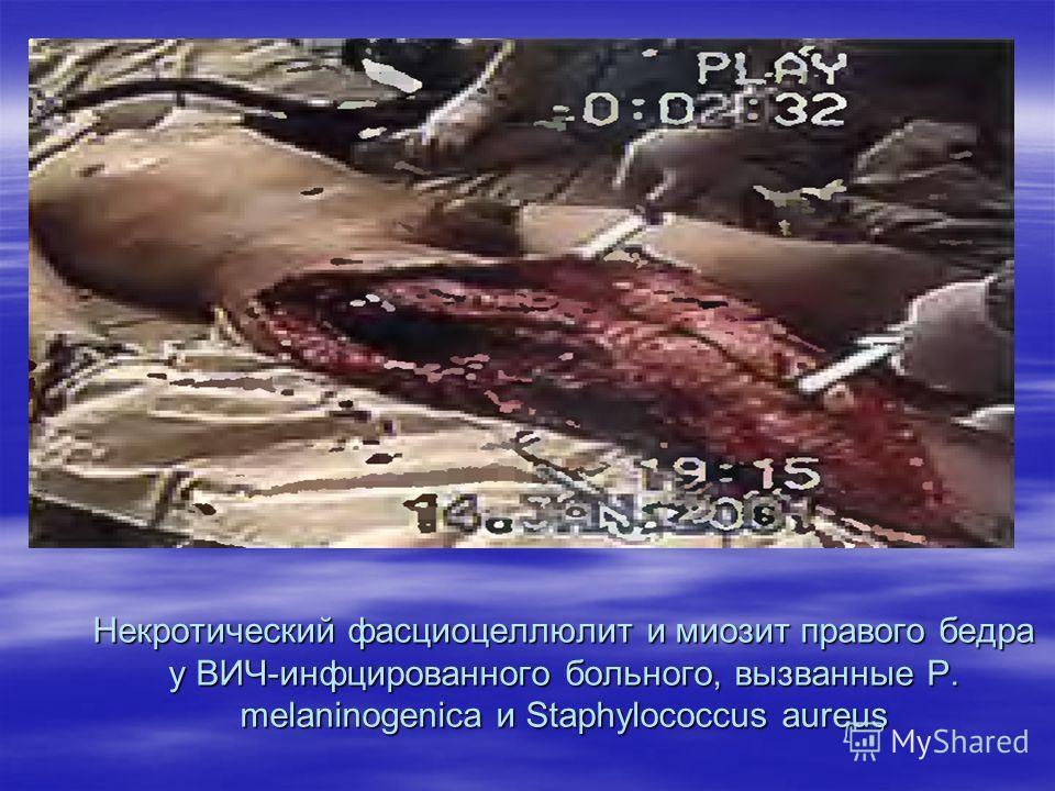 Некротический фасциоцеллюлит и миозит правого бедра у ВИЧ-инфцированного больного, вызванные P. melaninogenica и Staphylococcus aureus