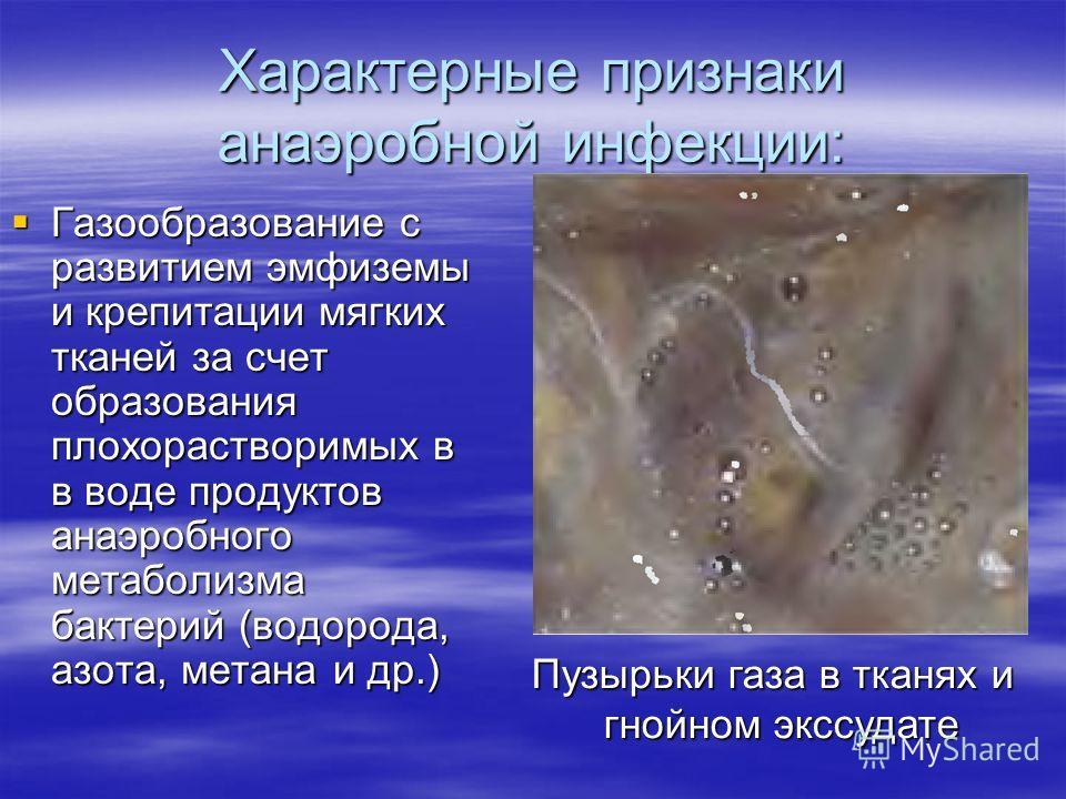 Характерные признаки анаэробной инфекции: Газообразование с развитием эмфиземы и крепитации мягких тканей за счет образования плохорастворимых в в воде продуктов анаэробного метаболизма бактерий (водорода, азота, метана и др.) Газообразование с разви