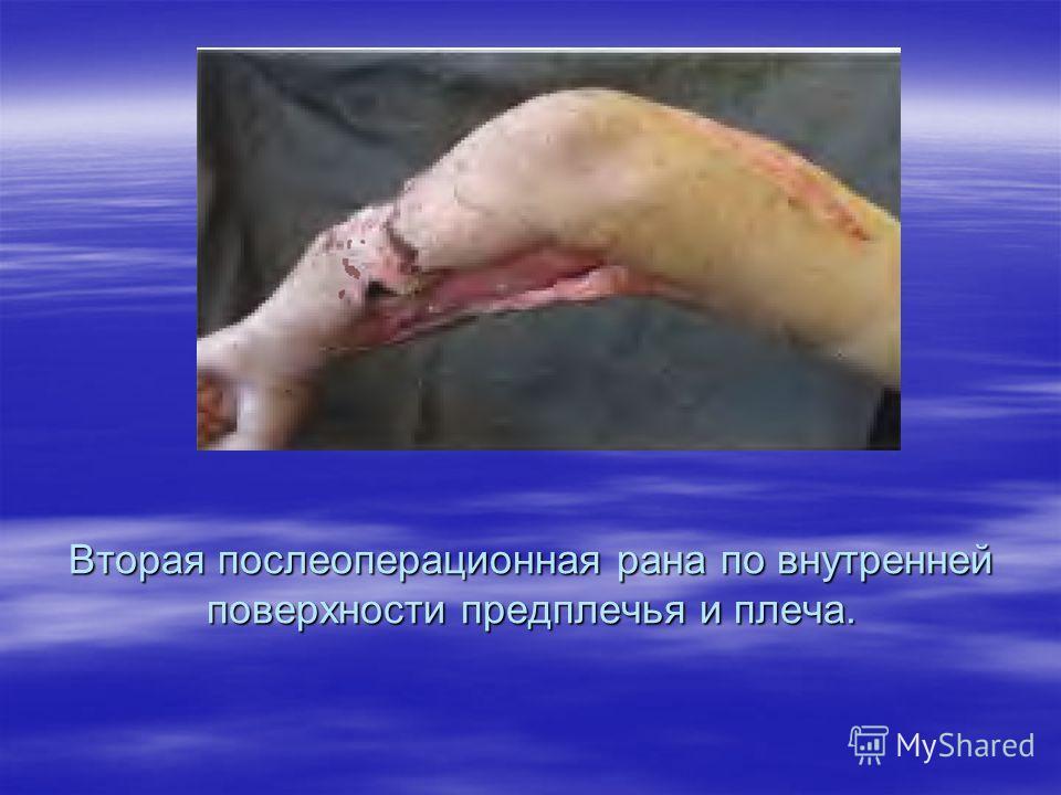 Вторая послеоперационная рана по внутренней поверхности предплечья и плеча.