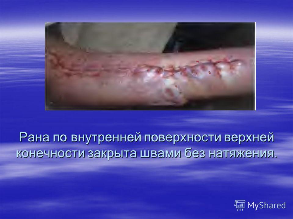 Рана по внутренней поверхности верхней конечности закрыта швами без натяжения.