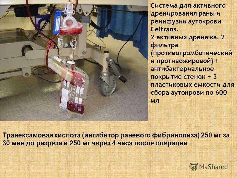 Система для активного дренирования раны и реинфузии аутокрови Celtrans. 2 активных дренажа, 2 фильтра (противотромботический и противожировой) + антибактериальное покрытие стенок + 3 пластиковых емкости для сбора аутокрови по 600 мл Транексамовая кис