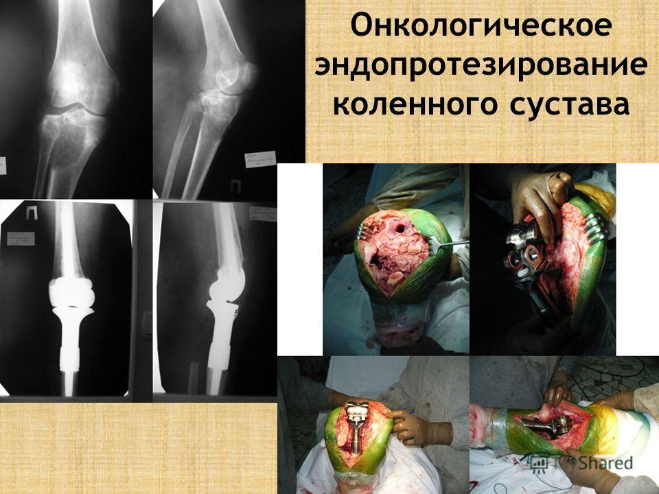 Онкологическое эндопротезирование коленного сустава