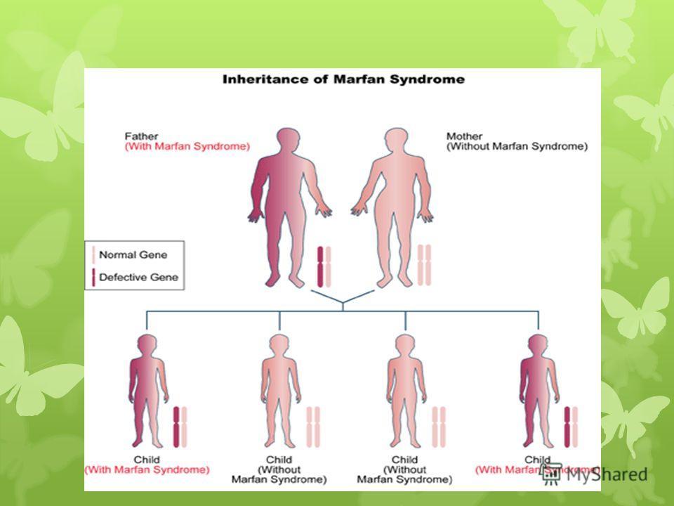Причина синдрома Марфана Синдром Марфана развивается вследствие дефекта (изменения) в гене, который определяет структуру фибрина, который играет огромную роль в соединительной ткани. Хотя каждый человек с синдромом Марфана имеет дефект определенного