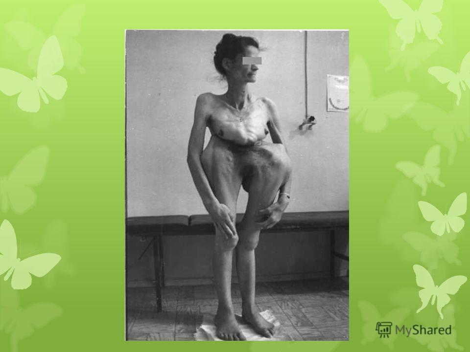 Скелет. человек с синдромом Марфана обычно очень высокий и худой. В связи с тем, что синдром Марфана сопровождается удлинением костей скелета: туловища, рук, ног, пальцев рук и ног, они могут быть непропорционально длинные. Другие скелетные аномалии
