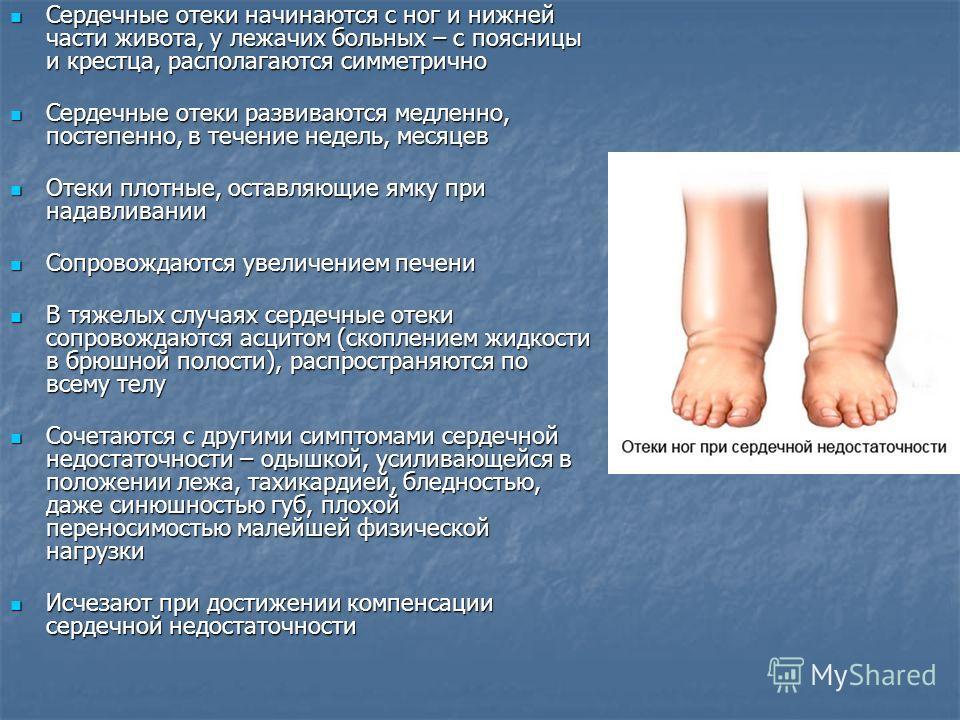 Отекают ноги сердечная недостаточность как лечить