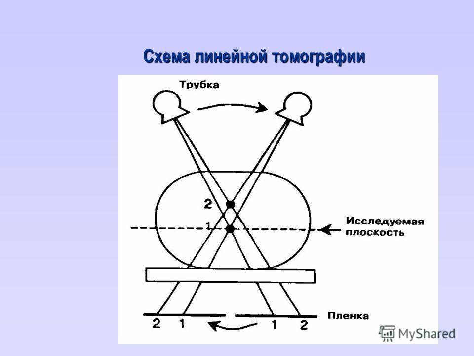Схема линейной томографии