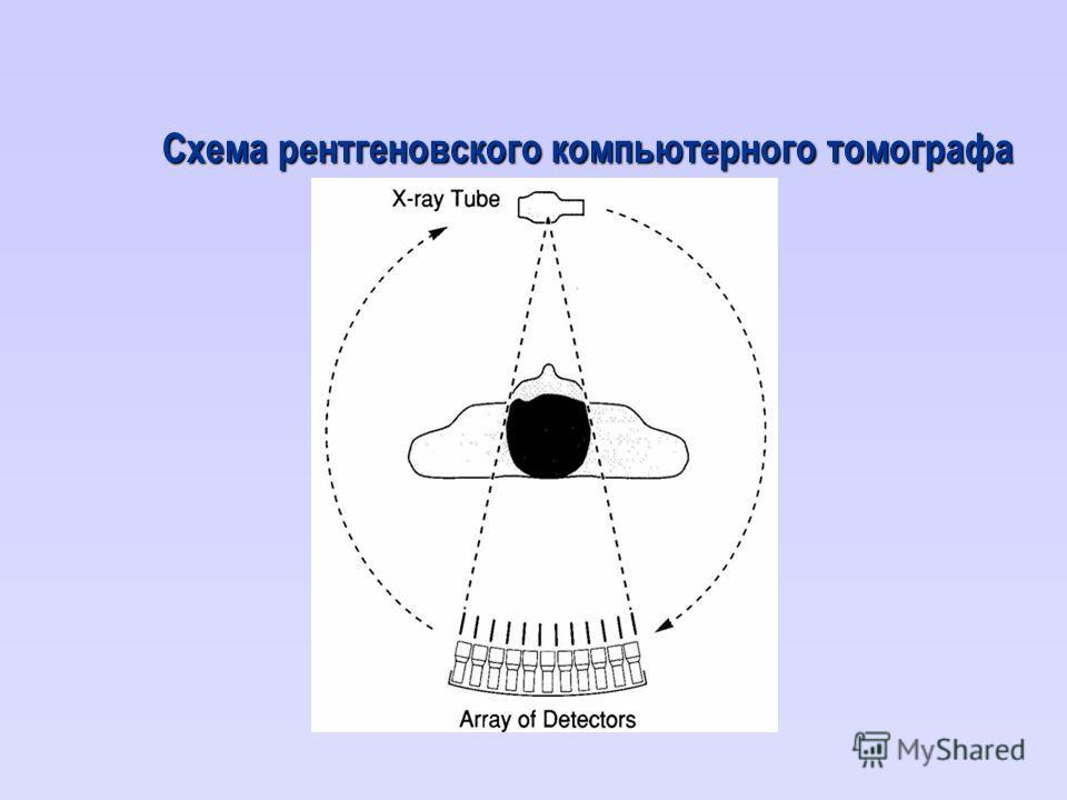 Схема рентгеновского компьютерного томографа