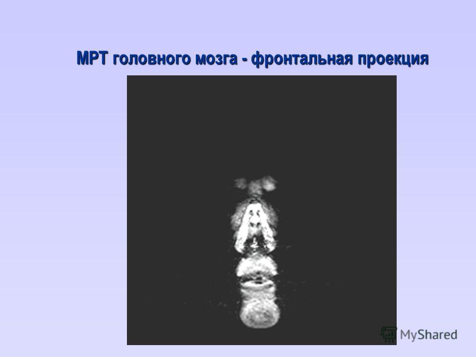 МРТ головного мозга - фронтальная проекция