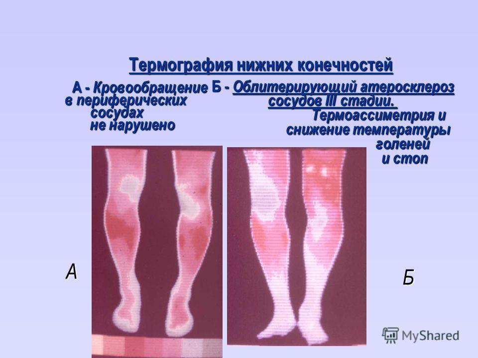 Термография нижних конечностей А - Кровообращение А - Кровообращение в периферических сосудах сосудах не нарушено не нарушено Б - Облитерирующий атеросклероз сосудов III стадии. Термоассиметрия и снижение температуры снижение температурыголеней и сто