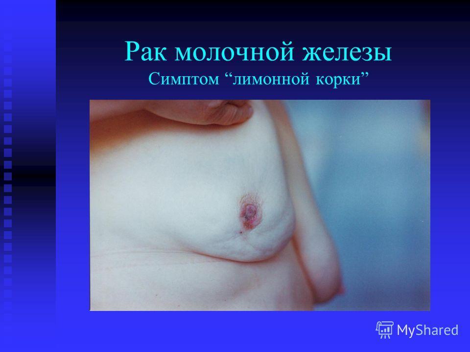 Рак молочной железы Симптом лимонной корки