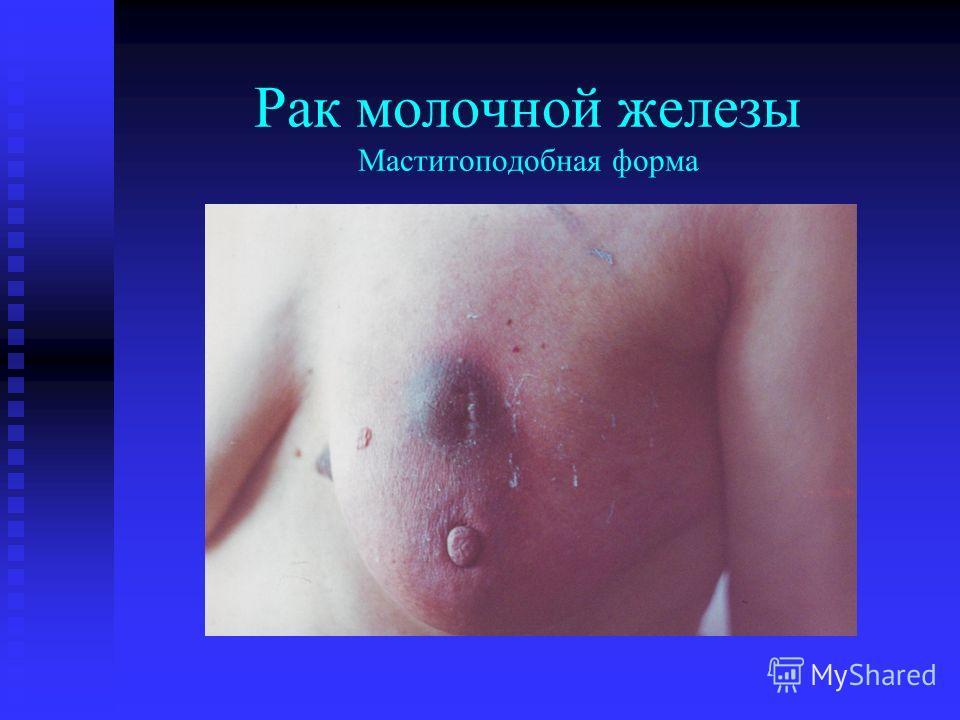 Рак молочной железы Маститоподобная форма