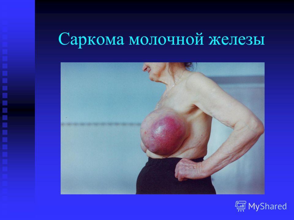 Саркома молочной железы