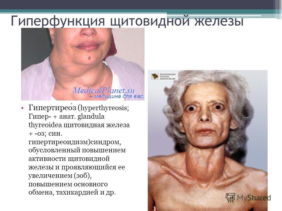 Гиперфункция щитовидной железы Гипертиреоз ( hyperthyreosis; Гипер- + анат. glandula thyreoidea щитовидная железа + -оз; син. гипертиреоидизм)синдром, обусловленный повышением активности щитовидной железы и проявляющийся ее увеличением (зоб), повышен