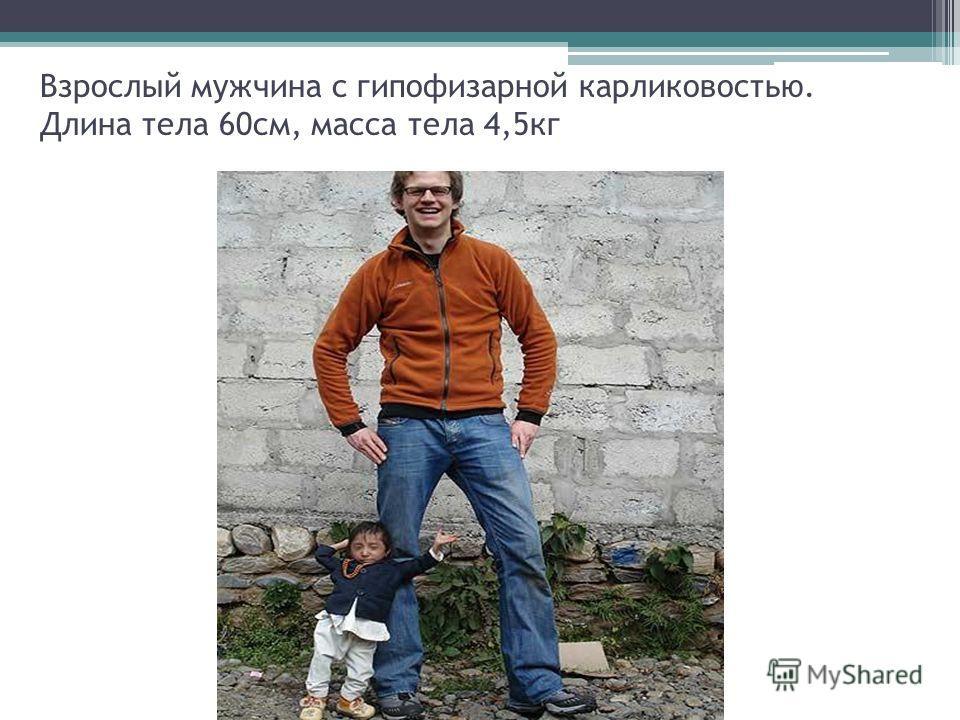 Взрослый мужчина с гипофизарной карликовостью. Длина тела 60см, масса тела 4,5кг